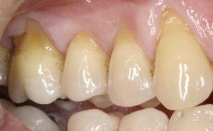 tratamiento periodoncia en León