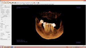 Escáner dentista en León