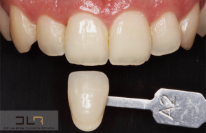 Blanqueamiento dental en clínica dental de León
