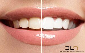 carillas-dentales-clinica-dental-delariva
