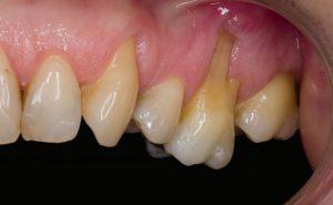 periodoncia-de-la-riva