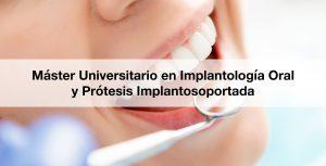 Máster Universitario en Implantología Oral