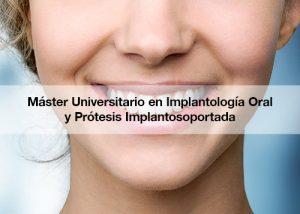 Master Universitario en Implantologia Oral y Protesis Implantosoportada