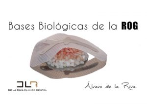 Bases Biologicas de la Regeneracion Osea Guiada
