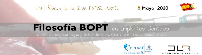 Webinar BOPT Implantes dentales