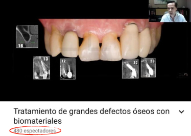 dentistas en leon tratamientos defectos oseos