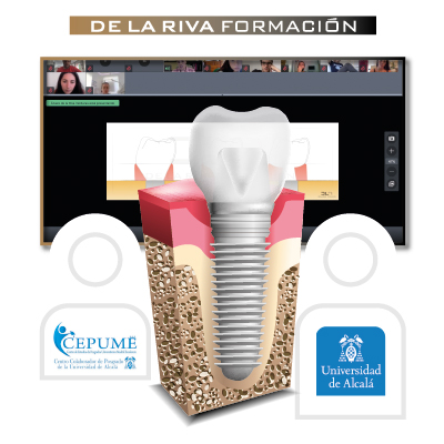 Máster de Implantología y Rehabilitación (Webinar)
